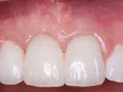 Functional Crown Lengthening-After
