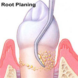Root Planing